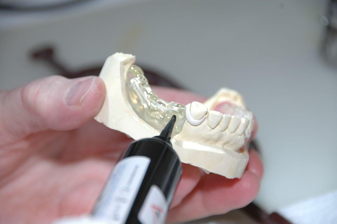 Jakimi sposobami można odbudować zniszczone zęby?